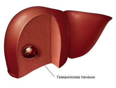 Гемангиома печени: тактика лечения и прогноз