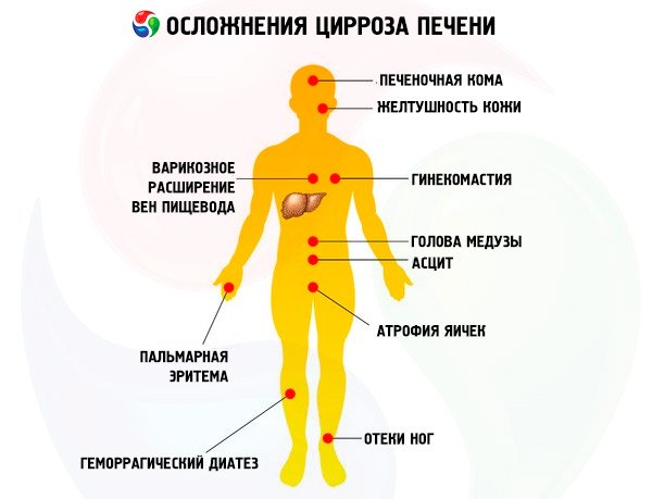 осложнения цирроза