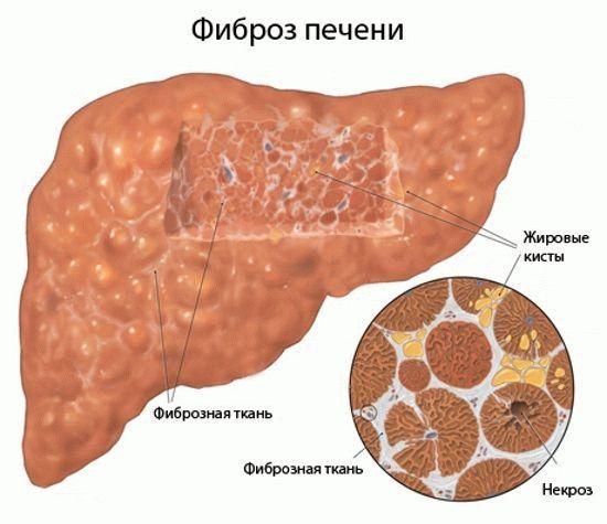 паразит эхинококк лечение