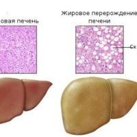 Причины, диагностика и лечение при жировом гепатозе