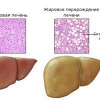 Клиника, диагностика и лечение жирового гепатоза печени