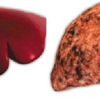Тактика лечения и правила питания при гепатозе печени