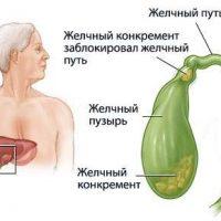 Симптомы, лечение и возможные осложнения холецистита
