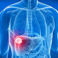 Классификация, причины и лечение рака печени