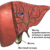 Клиническая картина холестероза желчного пузыря