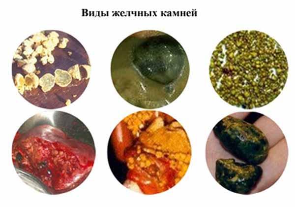 виды желчных камней