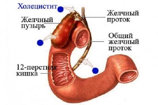 схема ходецистита