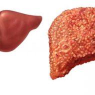 печень пораженная фиброзом