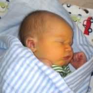 новорожденный с желтухой